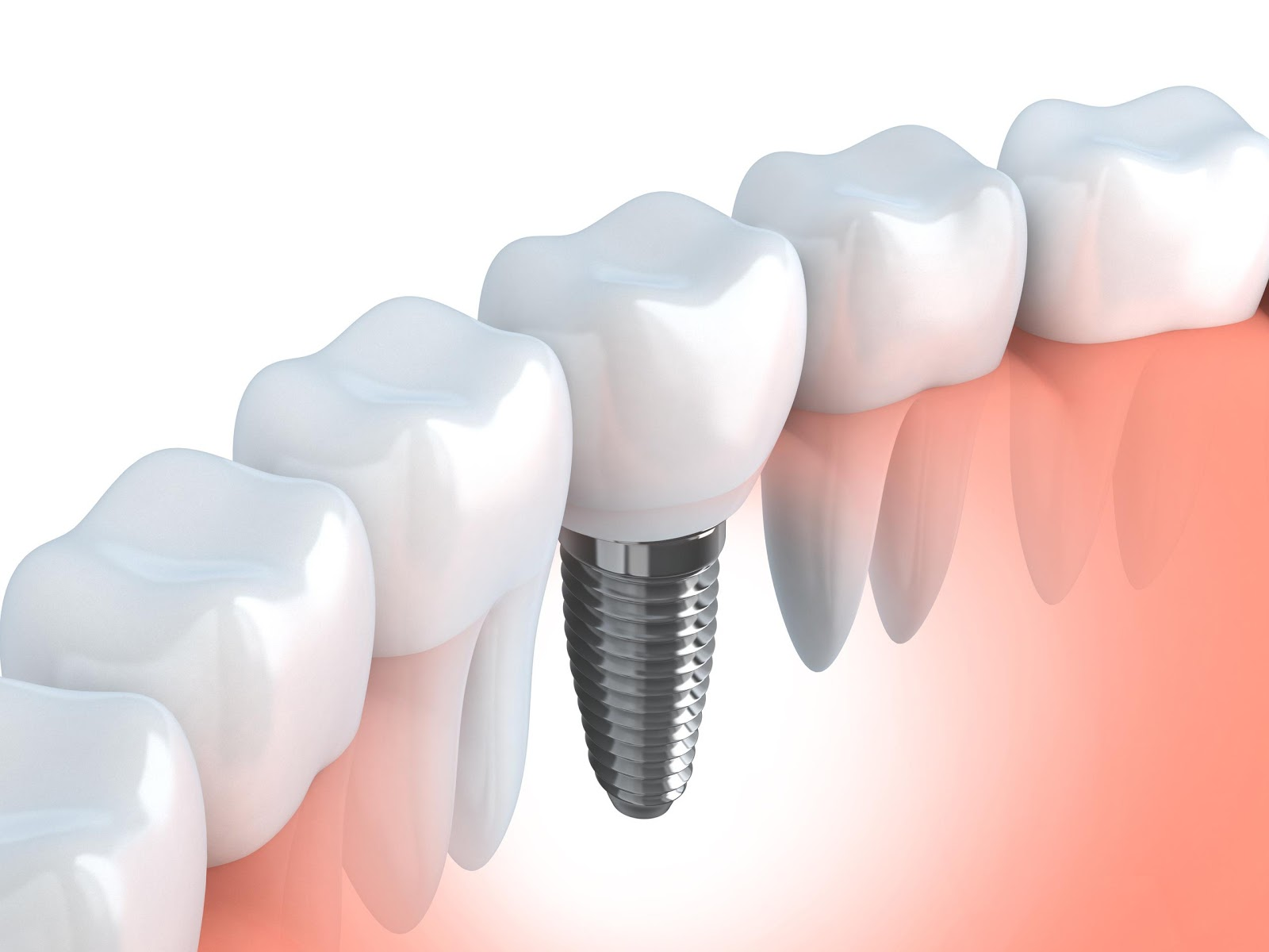 Dental Implants,, How To Get Your Smile Back With Dental Implants, Smile Back With Dental Implants